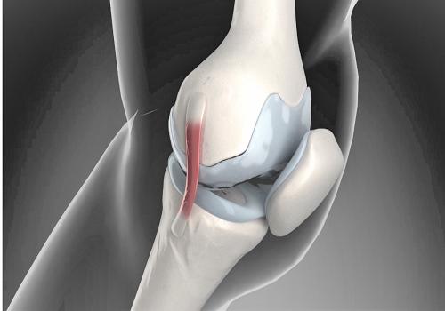 Боль в суставах: симптомы, причины и лечение