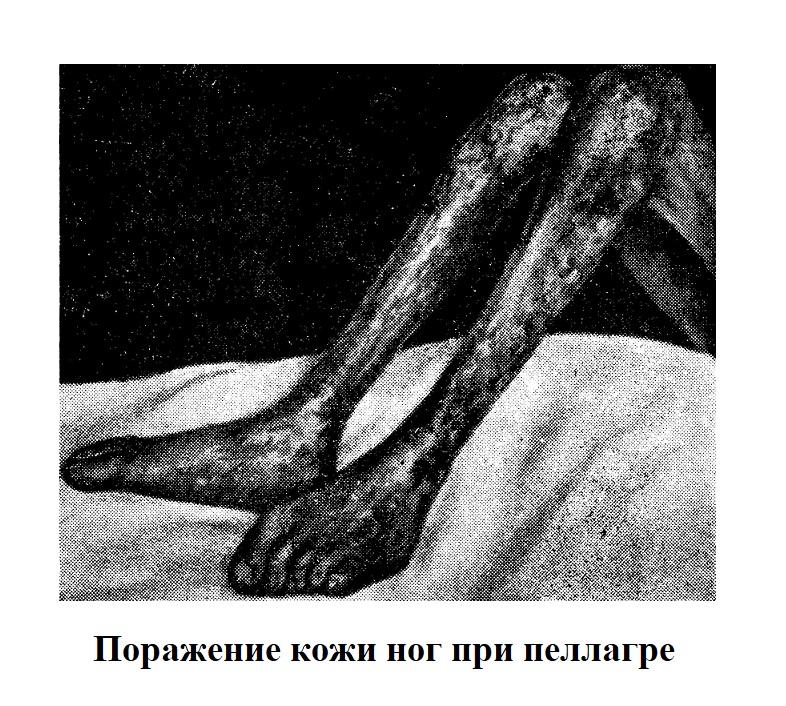 Поражение кожи ног при пеллагре
