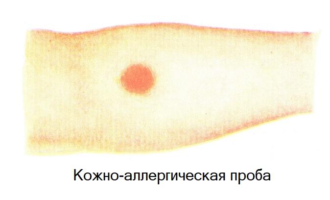 Кожно-аллергическая проба