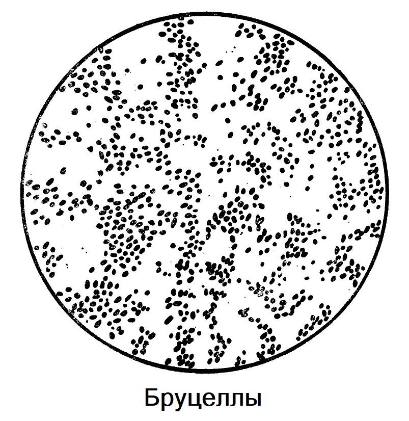 Бруцеллы микробиология
