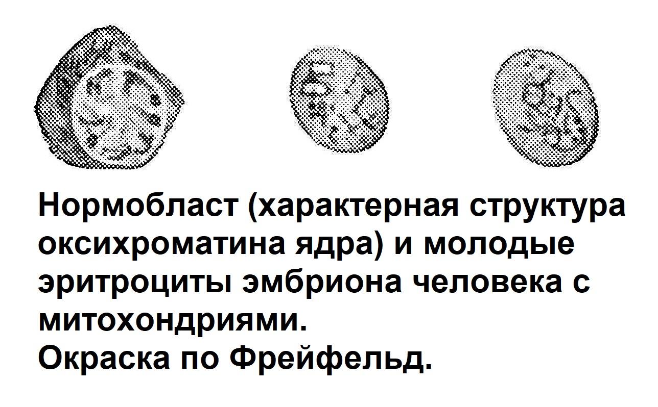. Нормобласт (характерная структура оксихроматина ядра) и молодые эритроциты эмбриона человека с митохондриями. Окраска по Фрейфельд.