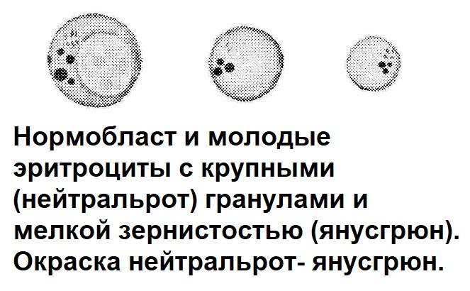 Нормобласт и молодые эритроциты с крупными (нейтральрот) гранулами и мелкой зернистостью (янусгрюн). Окраска нейтральрот- янусгрюн.
