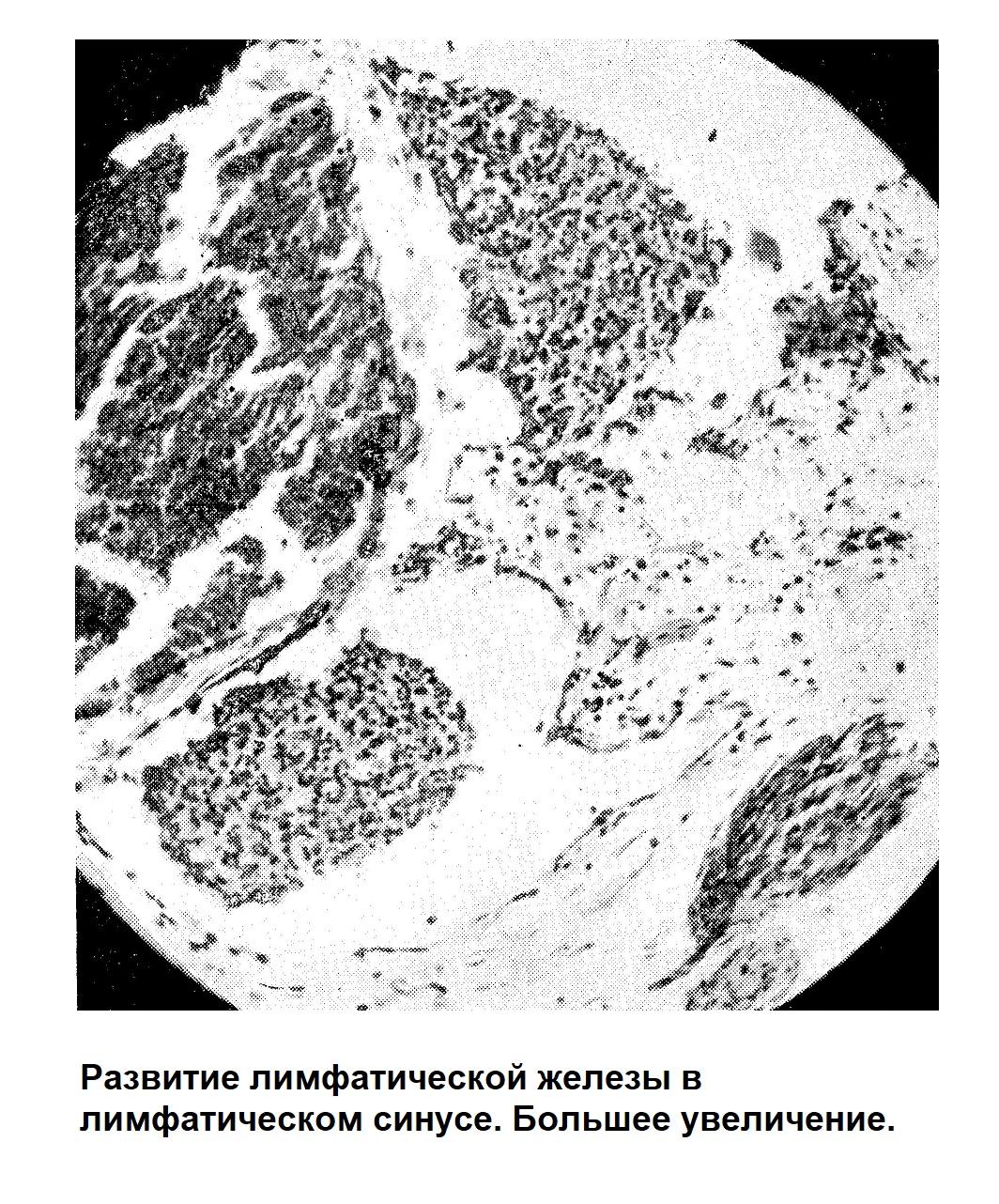 Развитие лимфатической железы в лимфатическом синусе. Большее увеличение.