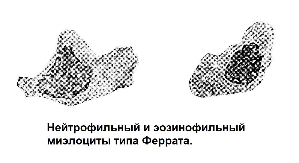 Нейтрофильный и эозинофильный миэлоциты типа Феррата