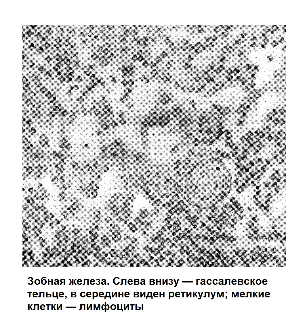 Зобная железа. Слева внизу — гассалевское тельце, в середине виден ретикулум; мелкие клетки — лимфоциты
