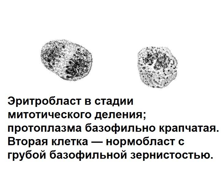 Эритробласт в стадии митотического деления; протоплазма базофильно крапчатая. Вторая клетка — нормобласт с грубой базофильной зернистостью.