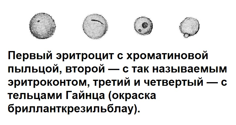 Первый эритроцит с хроматиновой пыльцой, второй — с так называемым зритроконтом, третий и четвертый — с тельцами Гайнца (окраска брилланткрезильблау).