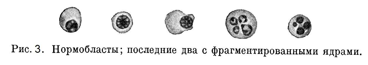 Нормобласты; последние два с фрагментированными ядрами.